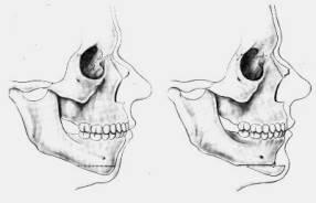 ostéotomie-bimaxillaire