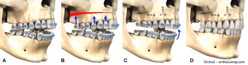 maxillary-impaction-maxillaire-chirurgie-orthodontie